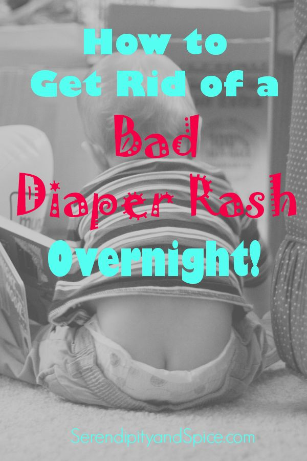 How to Get Rid of Diaper Rash Overnight