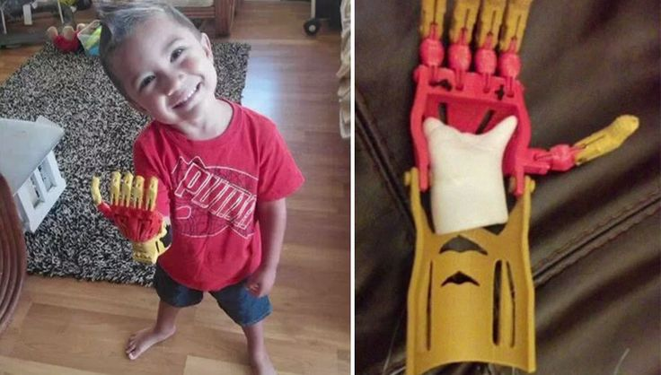 Awesome engineers created 3D-printed superhero prosthetics for kids » Lost At E Minor: For creative people