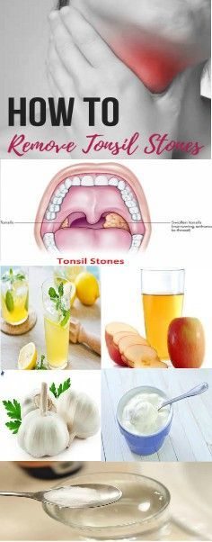 How to Get Rid of Tonsil Stones #Tonsils