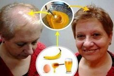 - Aprenda a preparar essa maravilhosa receita de Receita para crescer o cabelo: Deixar todos os médicos com a boca aberta!