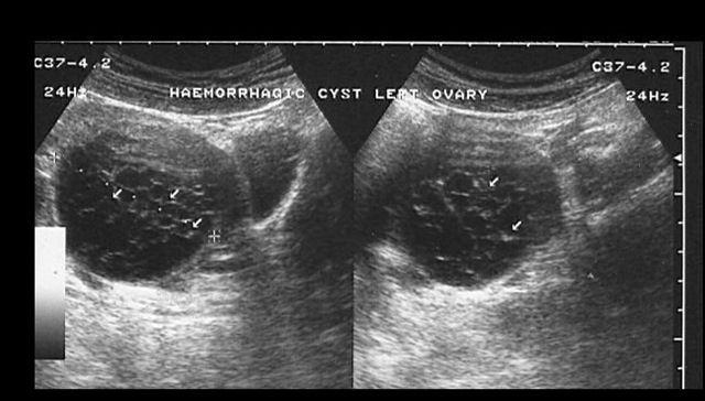 14 best Ovary Pathology images on Pinterest | Cyst on ...
