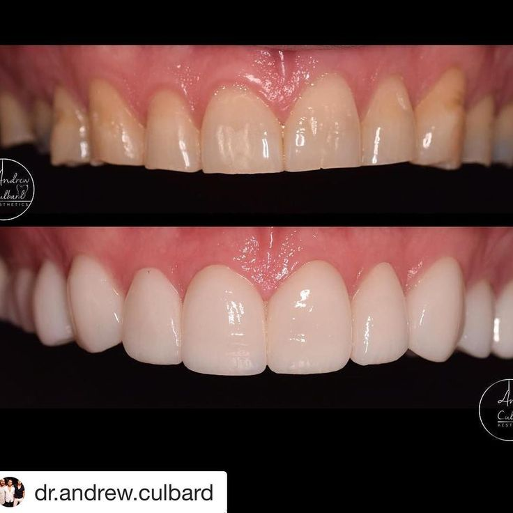 """9 Likes, 1 Comments - @theberkeleyclinic on Instagram: """"A simple smile makeover can make all the difference #berkeleyclinic #Invisalign #emax #crowns…"""""""