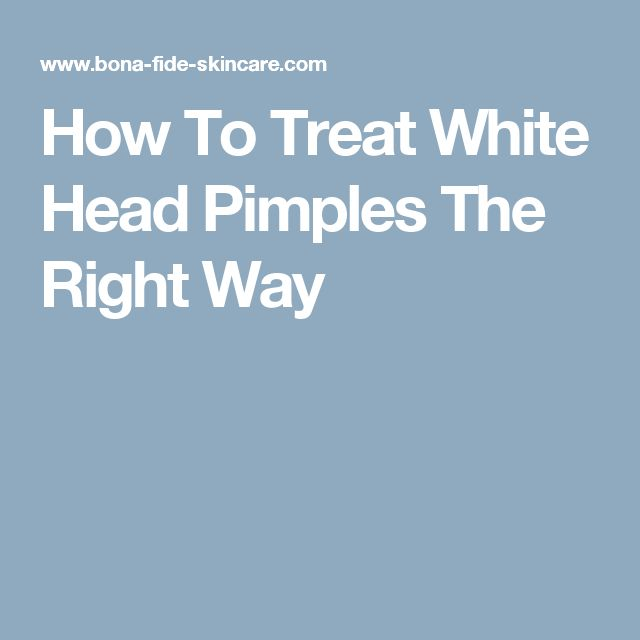 How To Treat White Head Pimples The Right Way