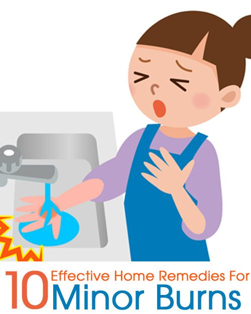 10 Effective Home Remedies For Minor Burns : Here are some easy, time tested home remedies for skin burns you could try when subjected to minor