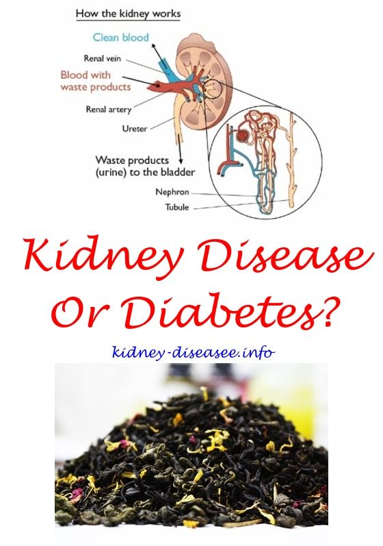 kidney cyst treats - chronic kidney disease symptoms.dialysis diet 4646516141
