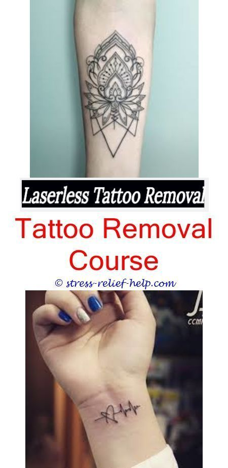 Best Numbing Cream For Laser Tattoo Removalbest Tattoo Removal
