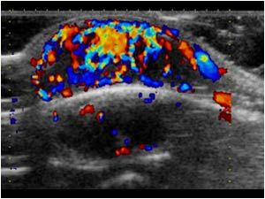 Hemangioma vascularization