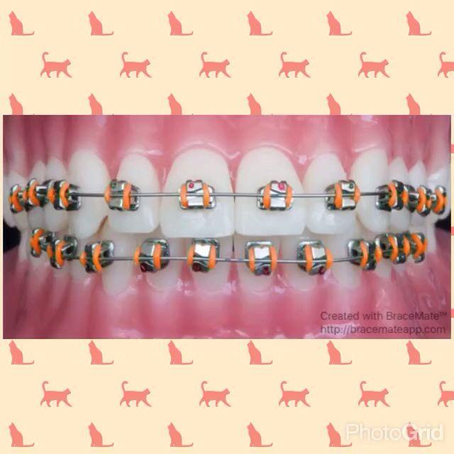 Have fun with colours for your braces!  Colours courtesy of AmericanOrthodontics elastics #braces #brackets #orthodontics #orthodontist #ortodoncia #ortodoncista #ortodontia #ortodontista #kieferorthopäden #kieferorthopäde #braceson #frenos #frenillos #bracesjourney #bracesproblems #zahnspange #aparelho #aparelhoortodontico #colour #color #colours #colors