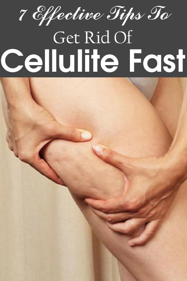 Get rid of the celulite?