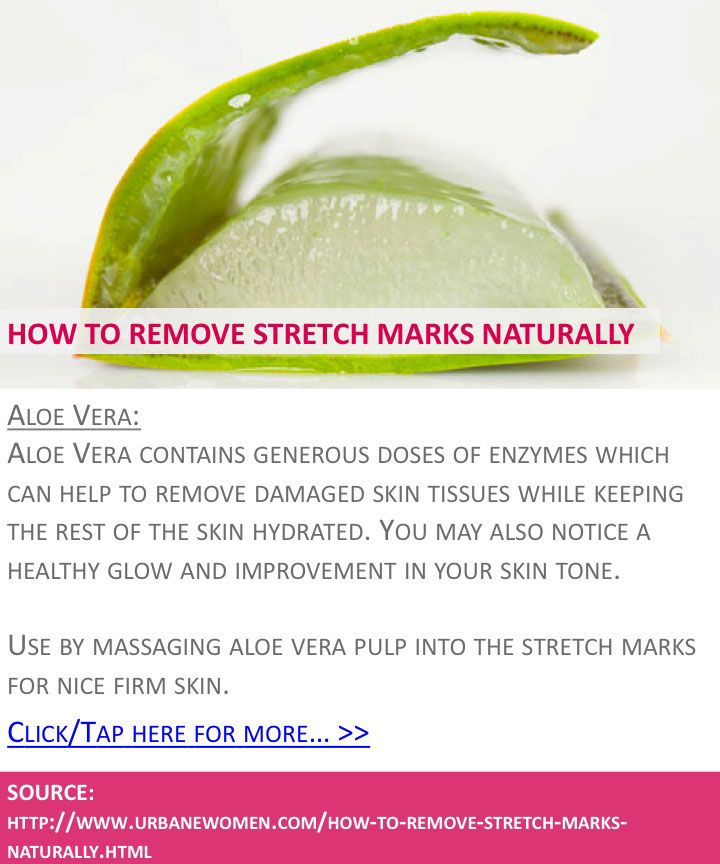 How to remove stretch marks naturally - Aloe vera - Click for more: http://www.urbanewomen.com/how-to-remove-stretch-marks-naturally.html