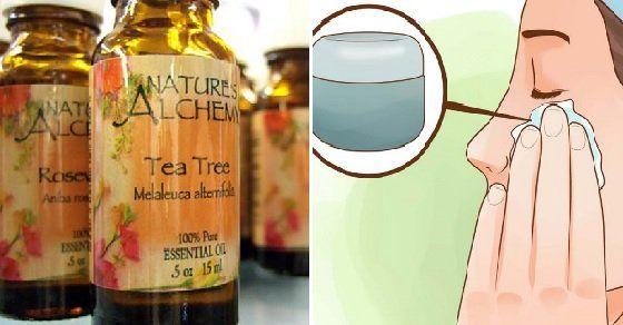L'acne è una condizione che affligge milioni di adulti e bambini e l'85% degli adolescenti. E' importante conoscere questa dieta e trattamenti naturali dato che la maggior parte delle persone o ci convivono oppure si rivolgono a prodotti chimici che hanno effetti collaterali o che non funzionano affatto.