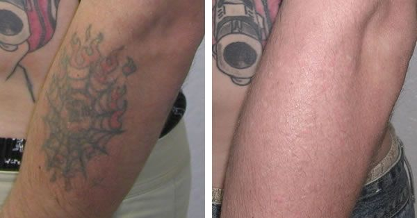 42 best tattoo removal images on pinterest laser tattoo for Best tattoo removal los angeles