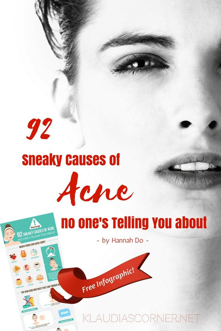 How To Cure Acne - 92 Sneaky Causes of Acne Free Printable Infographic by Hannah Do - It's not easy to beat acne. Just when you thought you have the perfect solution, you wake up with more zits that are bigger, redder and angrier than last time. And they seem to know exactly where to grow.You see, the problem with acne-prone skin is that treating those pimples by making the inflammation subside won't help you achieve a completely clear skin. To get rid of acne, you have to e
