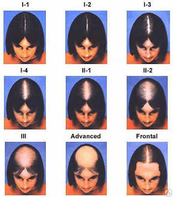 treatments for thinning hair in women http://forms.aweber.com/form/87/1855582087.htm