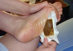 Foot pads are commonly worn in Japan - people stick the pads to the soles of their feet to rid their body of toxins through the night.