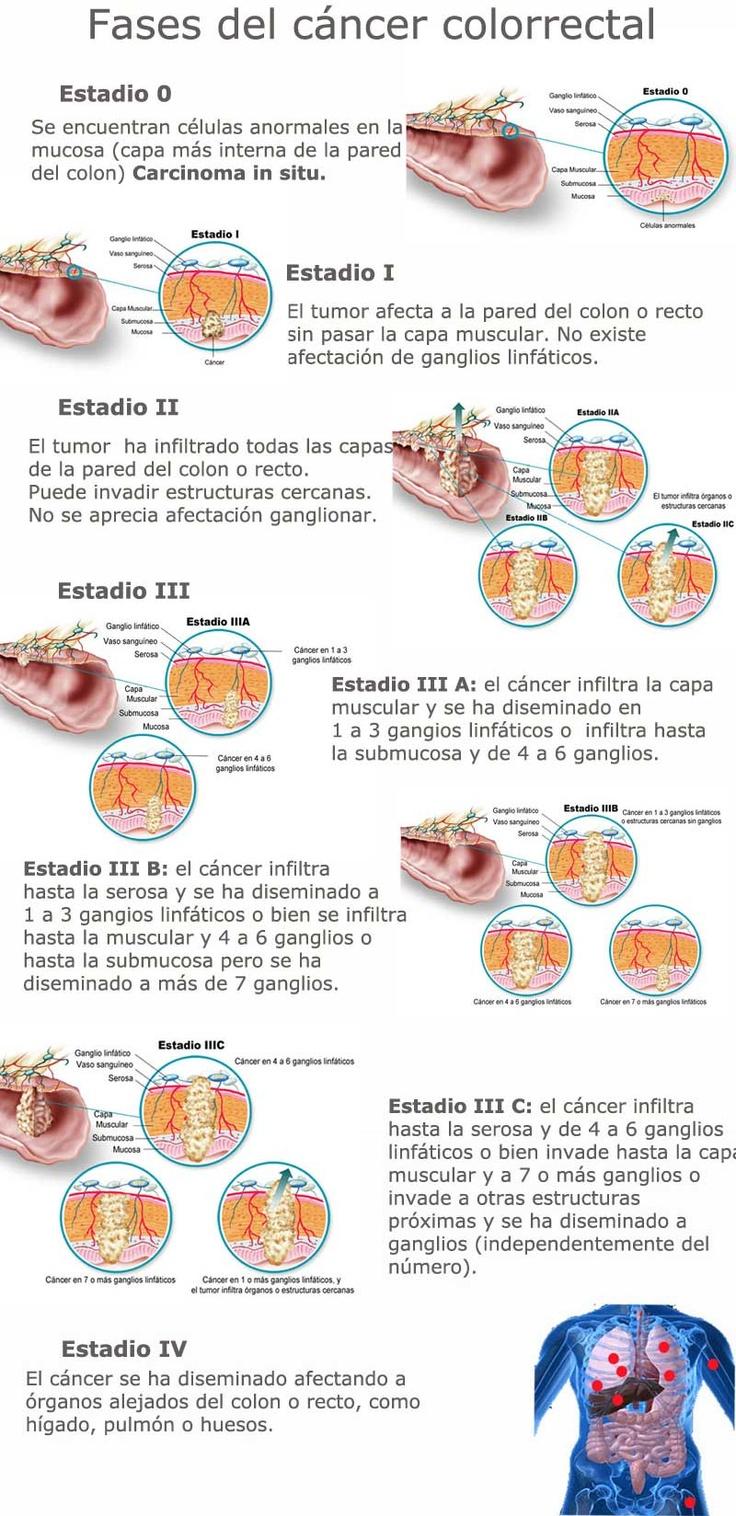 Fases del cáncer colorrectal