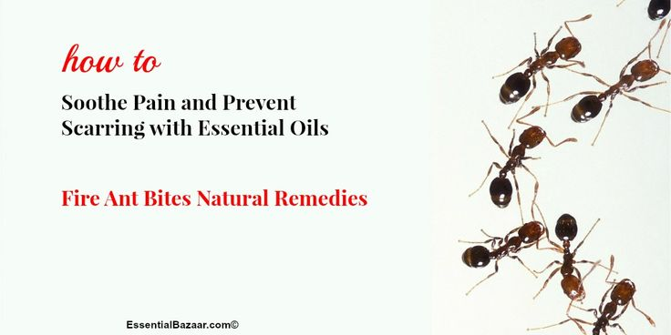 Take your pick from 7 of the best essential oils for fire ant bites and learn how to make your own soothing blends. You can also prevent scarring this way!