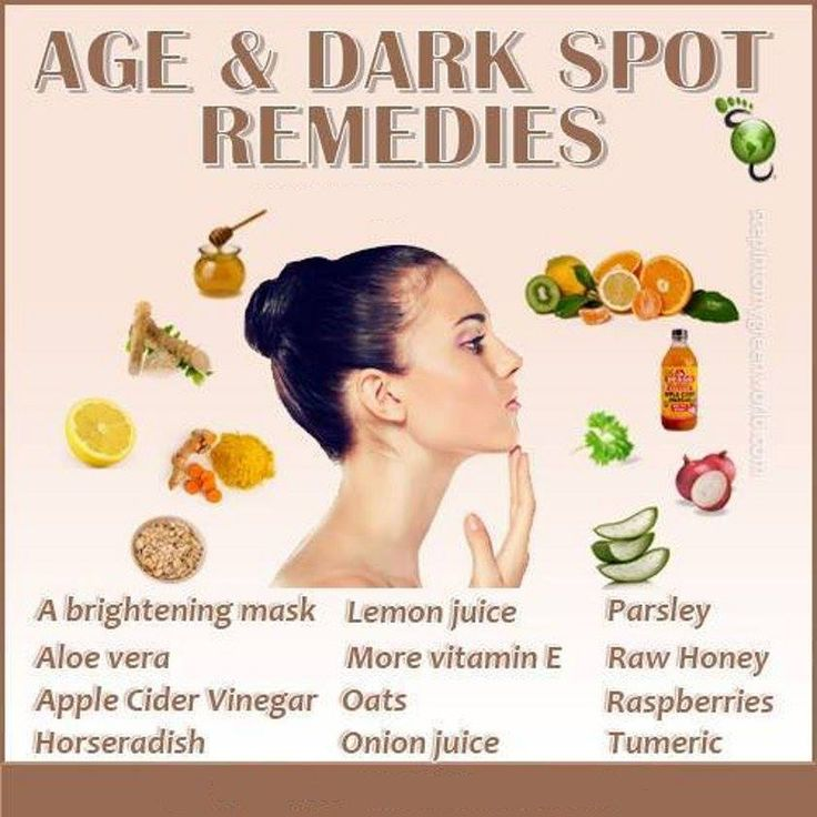 how to get rid of age spots home remedies