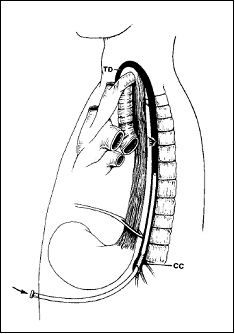 Trans-abdominal puncture of the thoracic duct.   Trans-cutaneous puncture at the left side of the neck is preferred for the Lipid Lift.