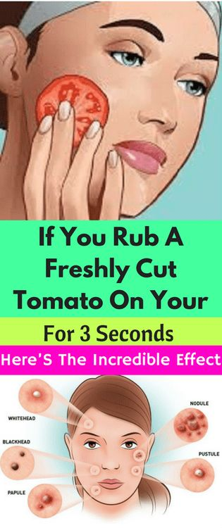 If You Rub A Freshly Cut Tomato On Your Face For 3 Seconds, Here'S The Incredible Effect - FHL