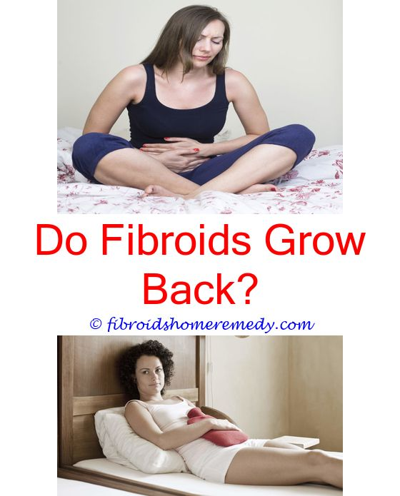 uterus removal due to fibroids - fibroids cysts and weight gain.bad food for fibroids fibroids cause heavy bleeding fibroids and polyps infertility 7930228817