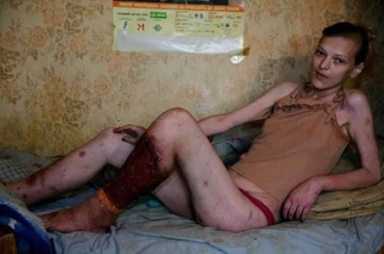 "Desomorphine (aka Krokodil) is a home-made, extremely cheap heroin substitute that is becoming widely popular in Russia. ""The drug that eats junkies"" literally eats at the flesh. Addicts will usually die within 1-2 years."