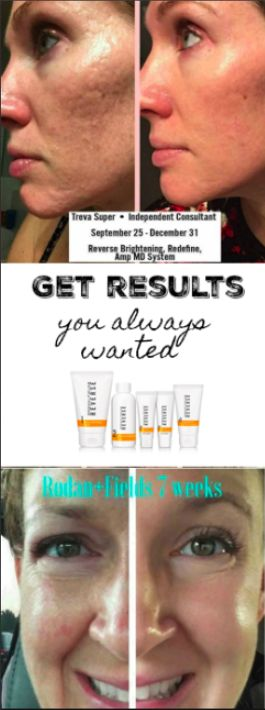 Get the results you always wanted. Shop reverse for brighter skin. Unblemish to get rid of acne. Roller to get rid of scaring. Lash boost for longer lashes, Soothe for sensitive skin. Rodan and Fields regiment. Rodan and Fields results. Rodan and Fields does it work. How to get rid of scars. Younger skin tips and tricks
