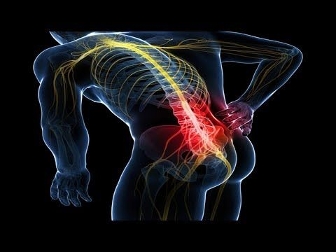 How to cure sciatica and relieve sciatic nerve pain
