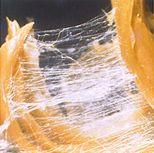 """Tegenwoordig is de fascia een belangrijk onderwerp. In de recente literatuur en binnen wetenschappelijk onderzoek wordt steeds meer aandacht gegeven aan de structuur genaamd """"fascia""""."""