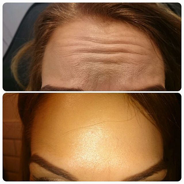 Before and after botox treatment on the forehead, client is raising eyebrows in ...