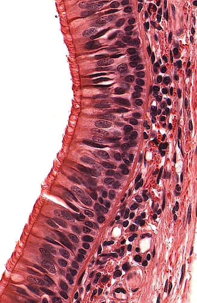 Pseudostratified columnar epithelia – trachea | AnatomyBox