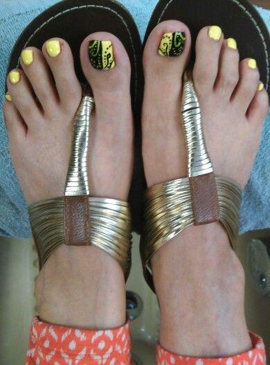 Yellow Toenails And Diabetes: 17 Best Ideas About Black Toe Nails On Pinterest