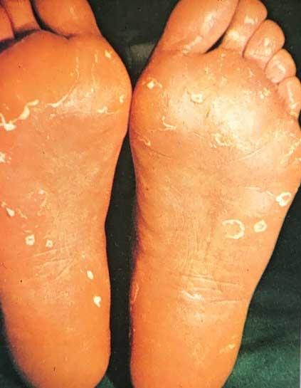 Reading up on Athlete's foot (tinea pedis)