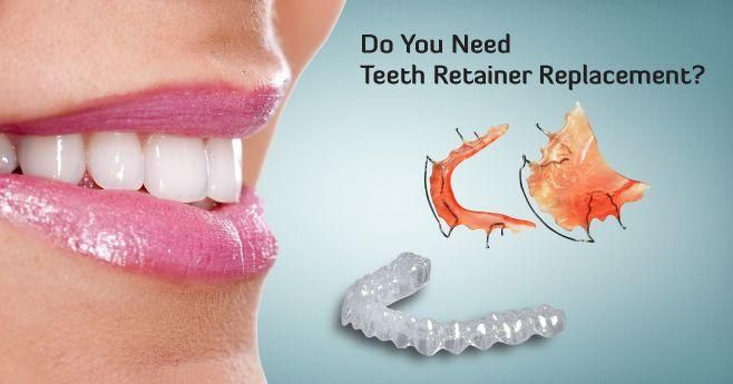 Affordable Replacement Teeth Retainers Online | Be Beautiful