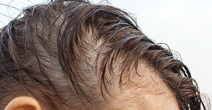 زراعة الشعر للنساء ونصائح قبل وبعد العملية Ear Tattoo Behind Ear Tattoo Ear