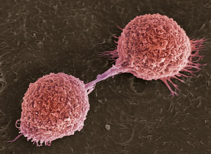 Oral squamous cell carcinoma cells completing cell division. This electron micrograph was taken during a migration assay. Image by Professor John F Marshall