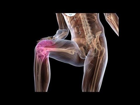 Боли в коленях Вылечить раз и навсегда - YouTube
