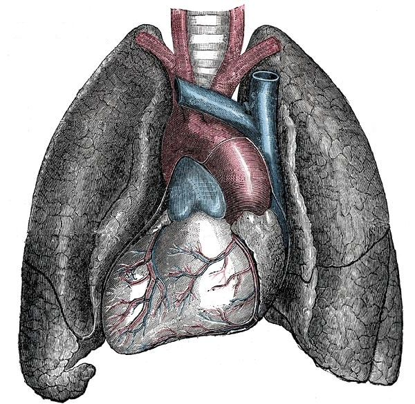 Situs inversus - Mirrored heart and lungs - Situs Inversus – Wikipédia, a enciclopédia livre