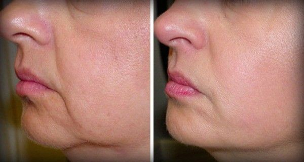 In the process of aging, the skin ages as well, and its elasticity and tightness…