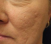 Eve's Special: How to vanish larger skin pores ? - Very Effective Home made facial mask
