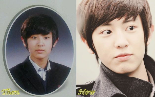 Chanyeol EXO Plastic Surgery Before And After Photos