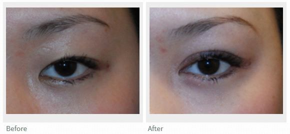 Before and After Asian Double Eyelid Surgery and Medial Epicanthoplasty