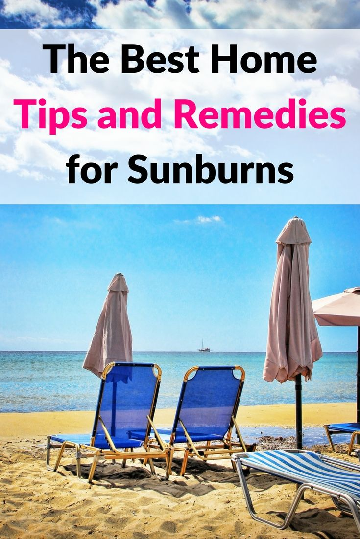 The best home tips and remedies for sunburns