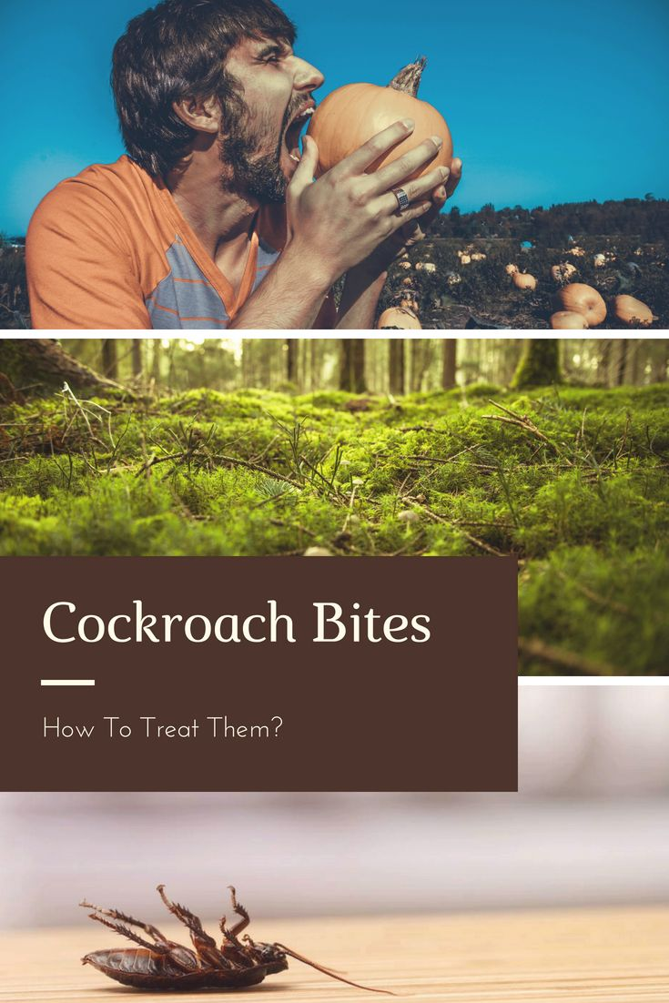 Cockroach Bites How To Treat Them Treats Survival Survival