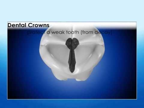 43 What is a crown