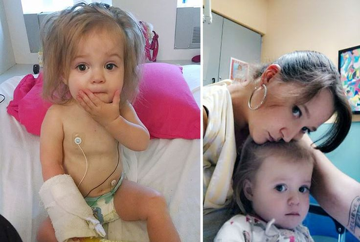 5-year-old-girl-wedding-photoshoot-before-heart-operation