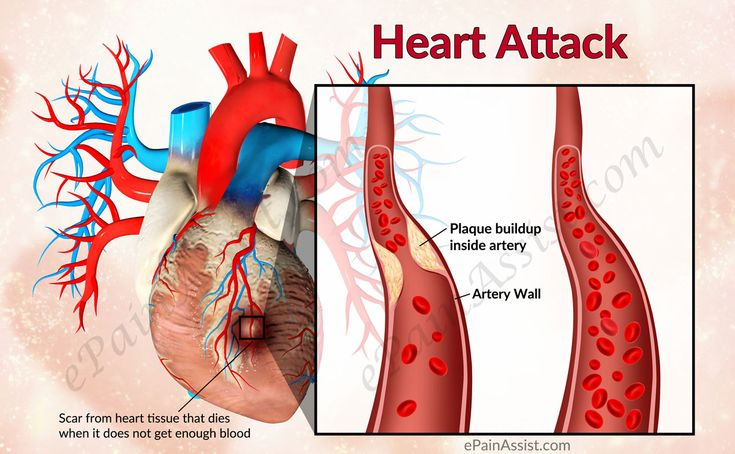a look at the cause of myocardial infarction and its management The third universal definition of myocardial infarction myocardial infarction (mi), commonly known as a heart attack, is defined pathologically as the irreversible death of myocardial cells caused by ischemia.