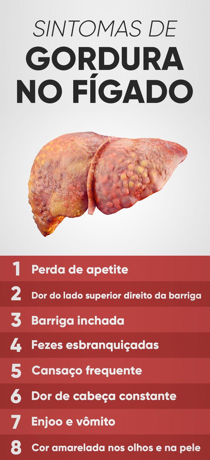 A gordura no fígado, também conhecida por esteatose hepática, normalmente não provoca sintomas nos graus mais leves da doença, e por isso é comum a doença ser descoberta quando o paciente faz exames para avaliar outros problemas de saúde.