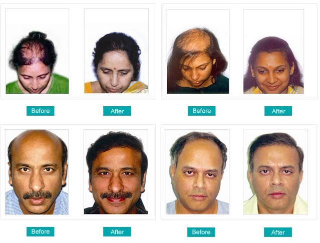 Best 25 hairline transplant ideas on pinterest baldness cure best 25 hairline transplant ideas on pinterest baldness cure 2016 korean plastic surgery and male pattern baldness cure pmusecretfo Gallery