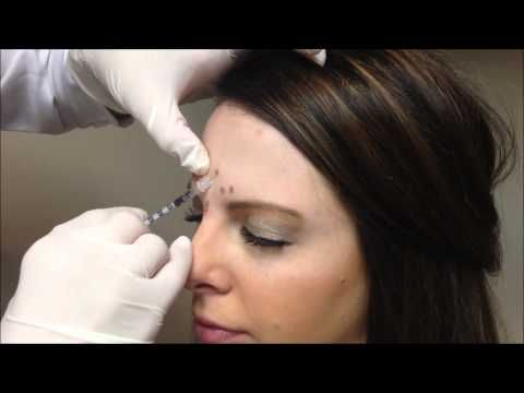 Allergan Botox Injections